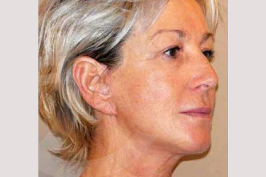 Face and Neck Lift PAVE-lift after side