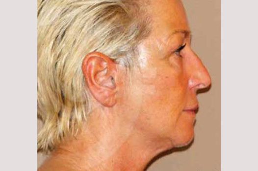 Face and Neck Lift PAVE-lift before profile