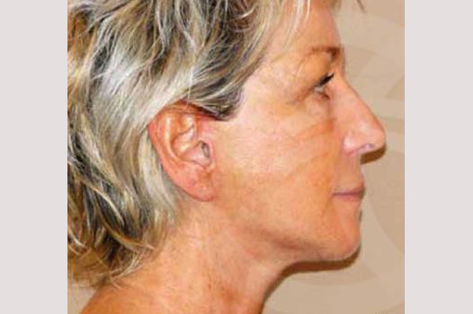 Face and Neck Lift PAVE-lift after profile