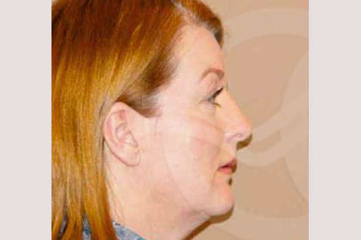 Face and Neck Lift MACS with fat grafting before profile