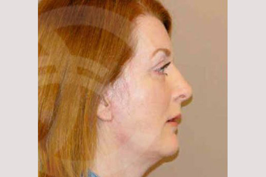 Face and Neck Lift MACS with fat grafting after profile