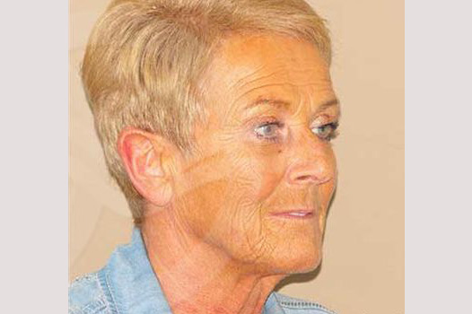 Face and Neck Lift PAVE neck and face before side