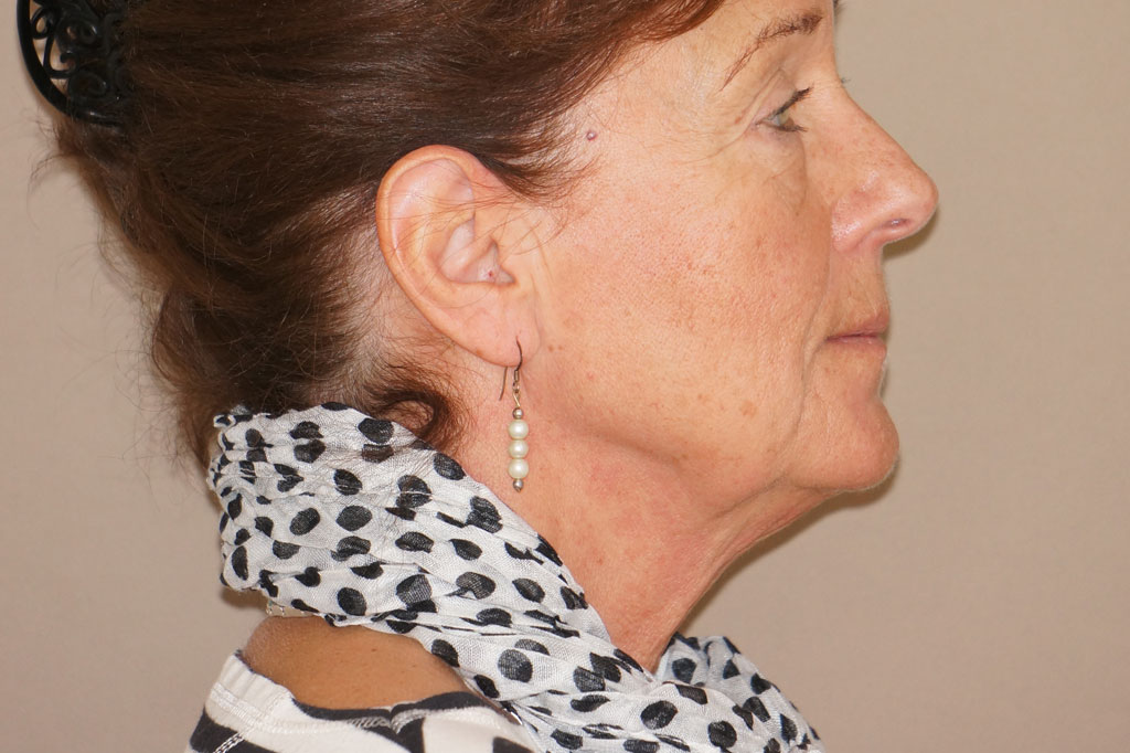 Face and Neck Lift PAVE with Lipografting before profile