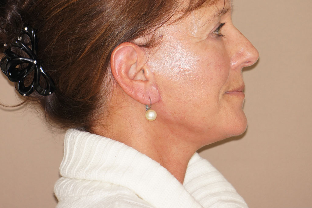 Face and Neck Lift PAVE with Lipografting after profile