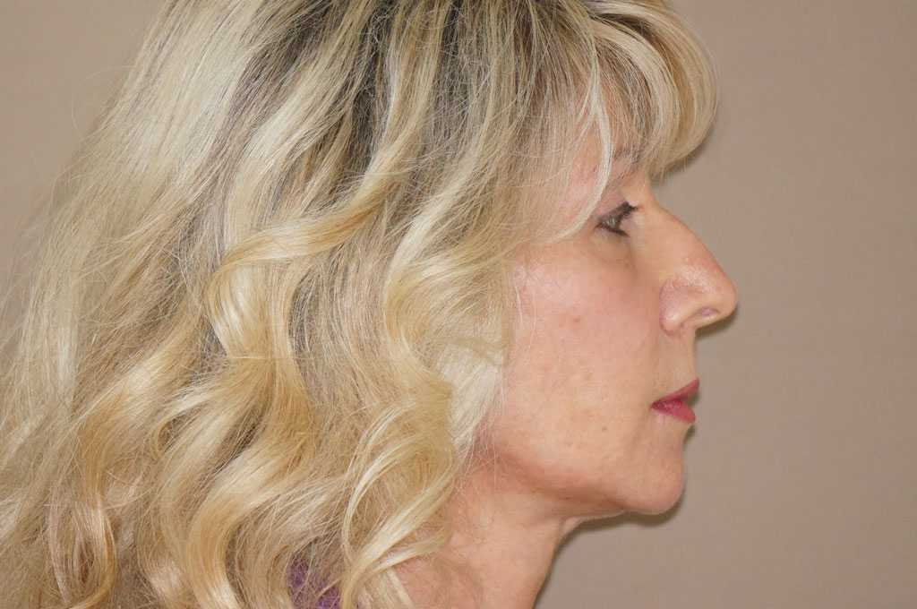 Face and Neck Lift RHYTIDECTOMY after profile