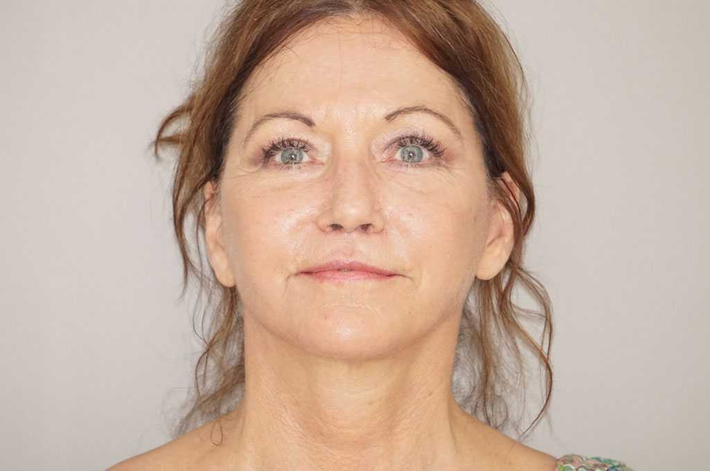Face and Neck Lift Rhytidectomy after frontal