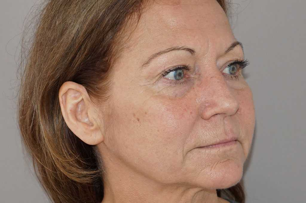 Lifting de cara y cuello Estiramiento Facial before side