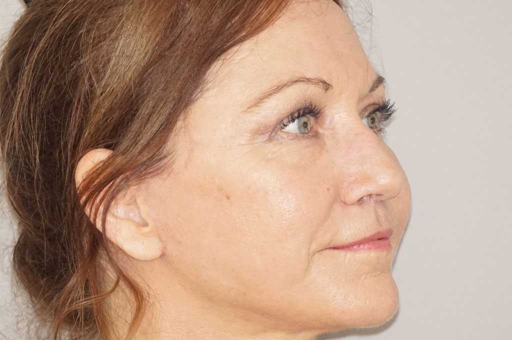 Lifting de cara y cuello Estiramiento Facial after side
