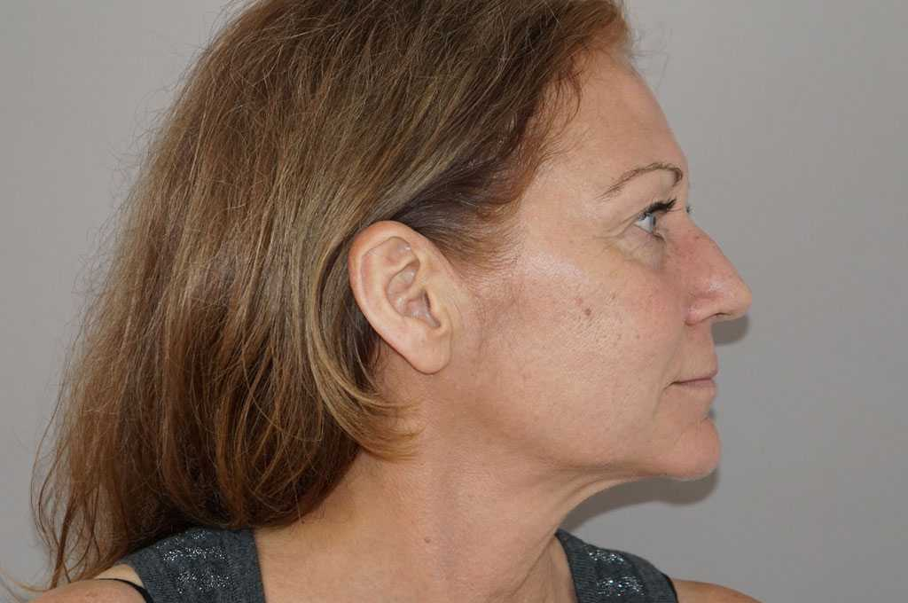 Lifting de cara y cuello Estiramiento Facial before profile