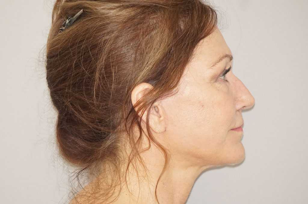 Lifting de cara y cuello Estiramiento Facial after profile