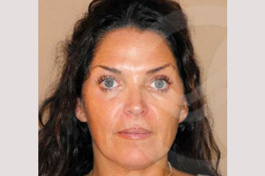 Facial Fat Grafting Mini-facelift before forntal