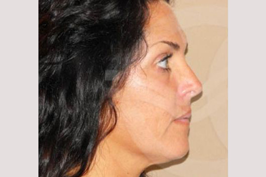 Facial Fat Grafting Mini-facelift before profile