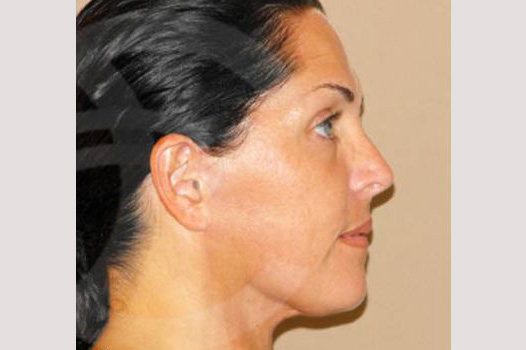 Facial Fat Grafting Mini-facelift after profile