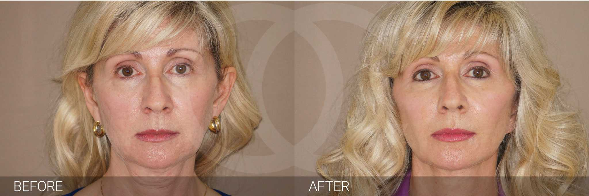 Gesichtsbehandlung mit Eigenfett BEHANDLUNG MIT EIGENFETT ante/post-op I