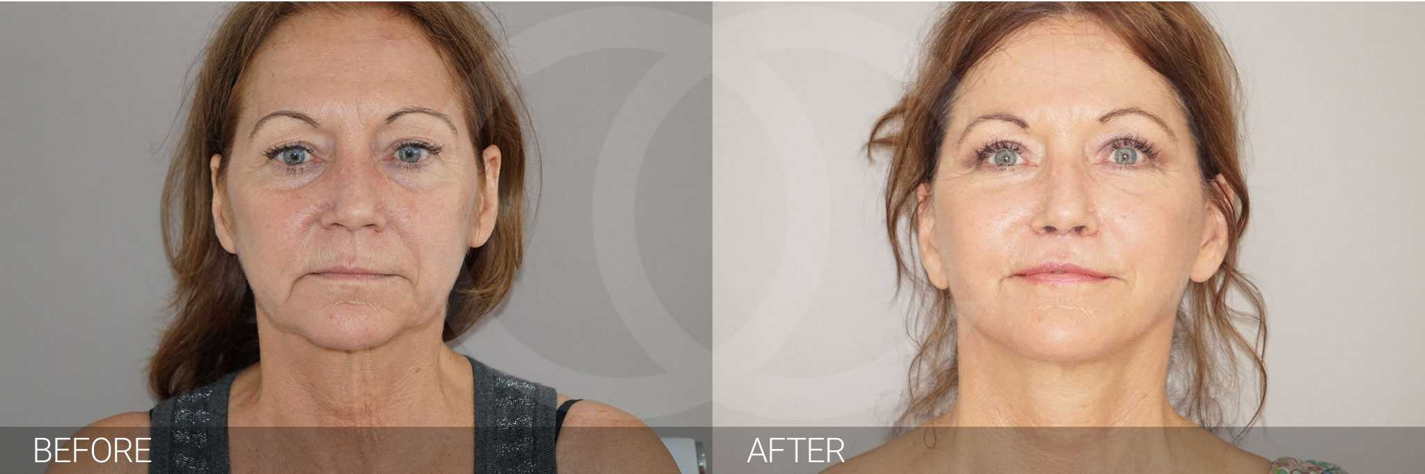 Facial Fat Grafting FULL WITH FAT TRANSFER ante/post-op I