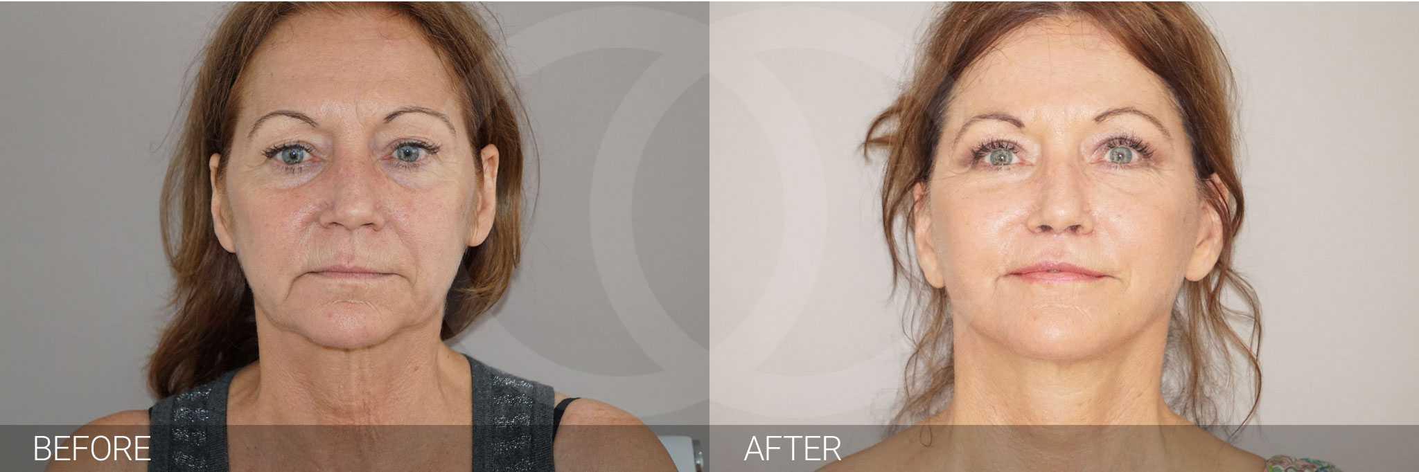 Gesichtsbehandlung mit Eigenfett PAVE Gesichtslift ante/post-op I