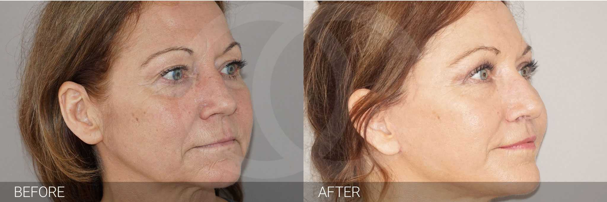 Facial Fat Grafting FULL WITH FAT TRANSFER ante/post-op II