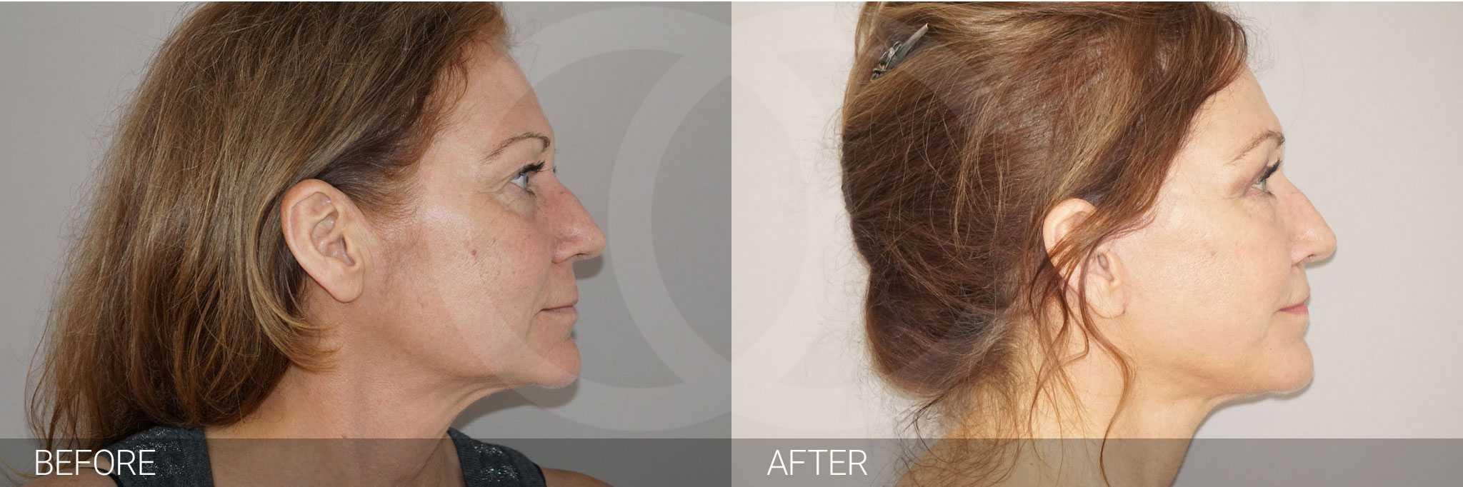 Gesichtsbehandlung mit Eigenfett PAVE Gesichtslift ante/post-op III