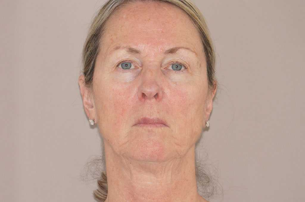 Facial Fat Grafting PAVE-FACELIFT before forntal