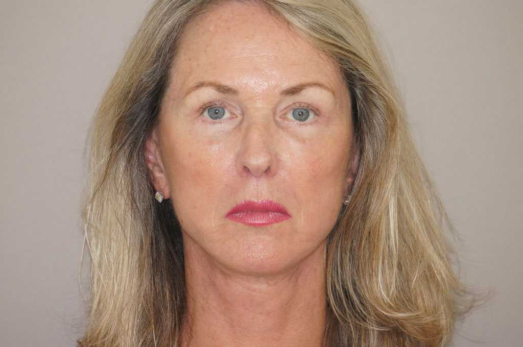Facial Fat Grafting PAVE-FACELIFT after frontal