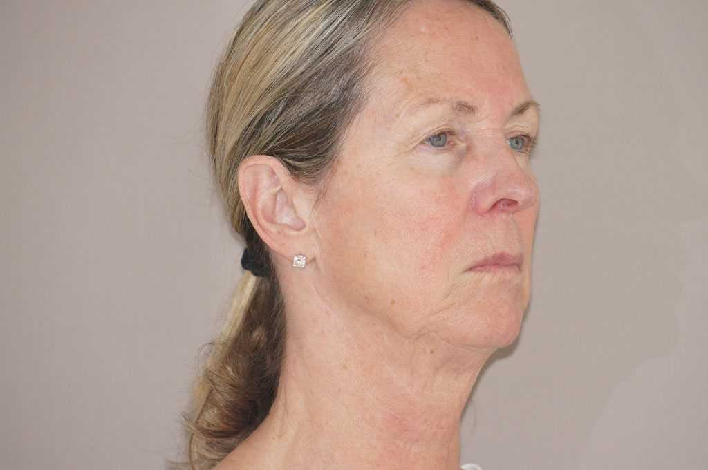 Facial Fat Grafting PAVE-FACELIFT before side