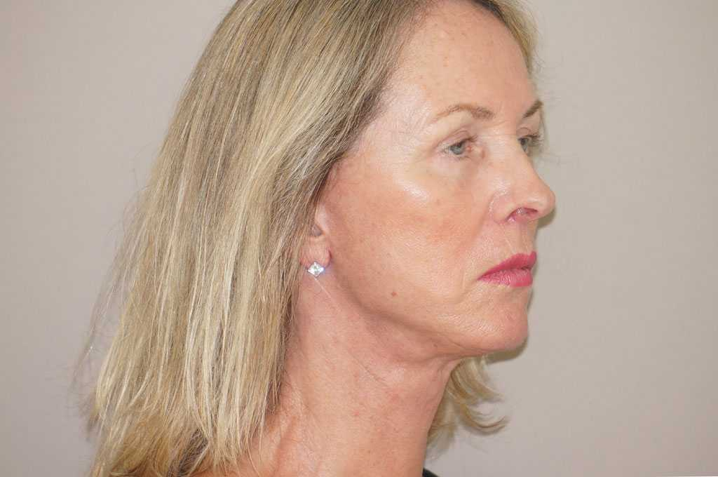 Facial Fat Grafting PAVE-FACELIFT after side