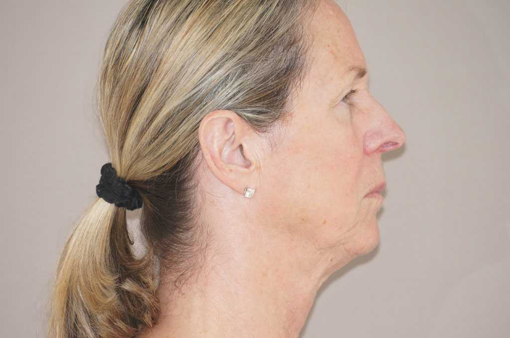 Facial Fat Grafting PAVE-FACELIFT before profile