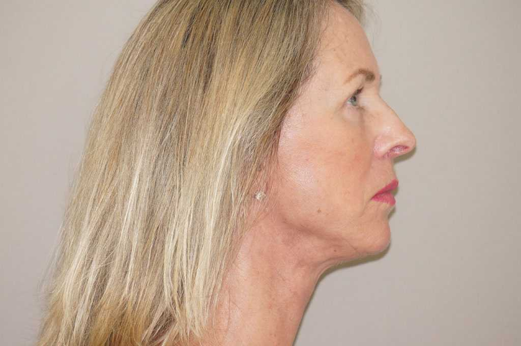 Facial Fat Grafting PAVE-FACELIFT after profile