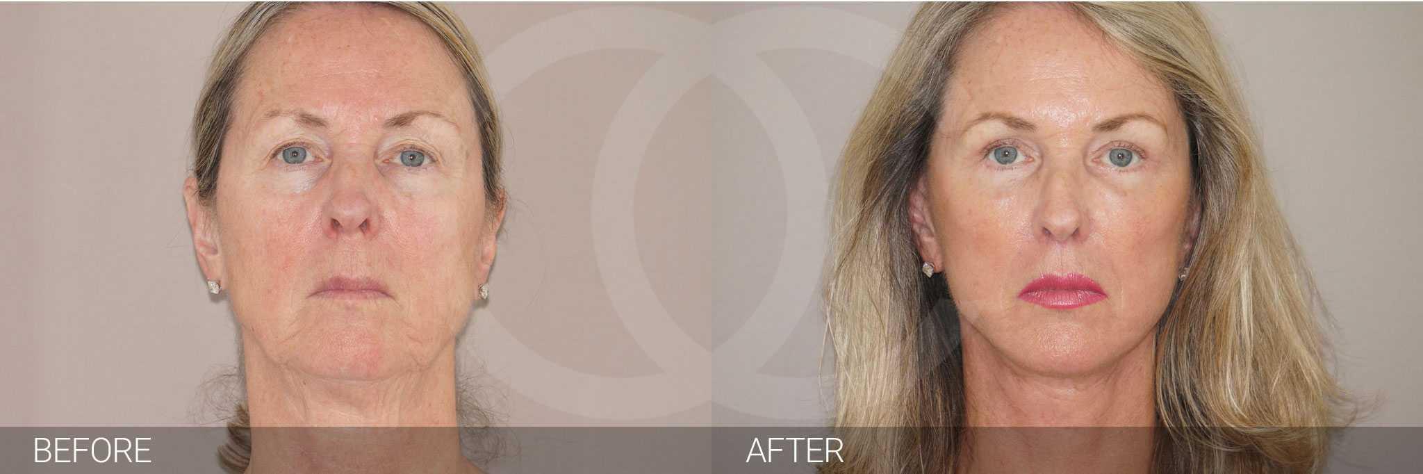 Gesichtsbehandlung mit Eigenfett PAVE-GESICHTSLIFT ante/post-op I