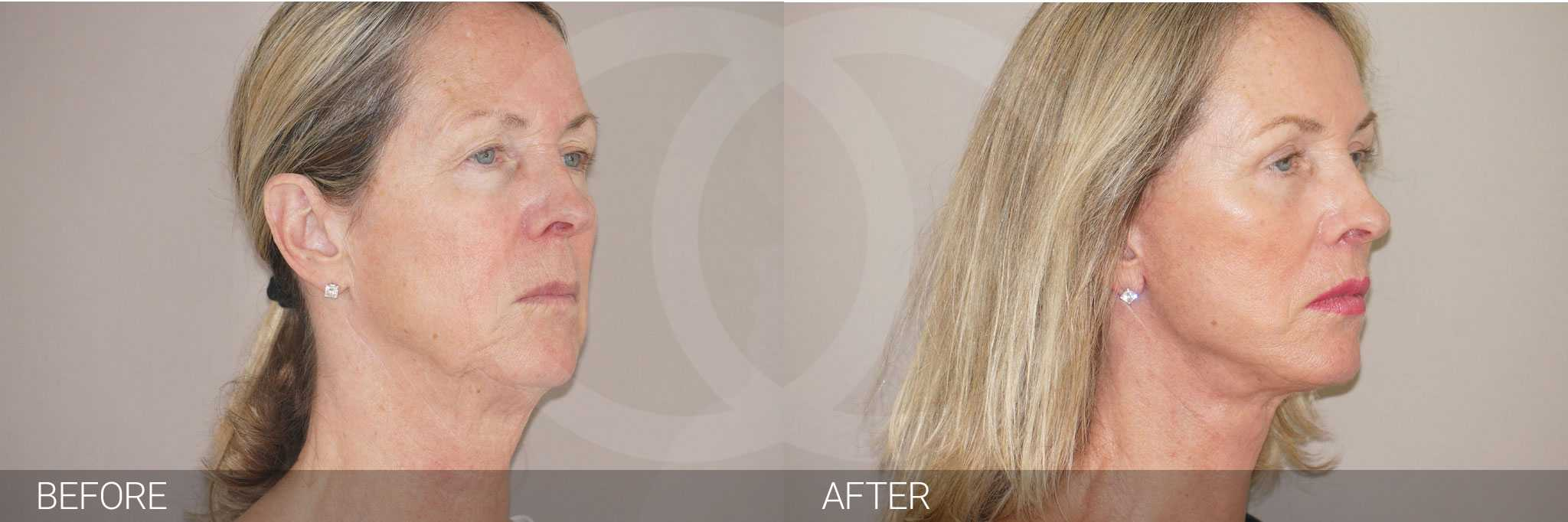 Facial Fat Grafting PAVE-FACELIFT ante/post-op II