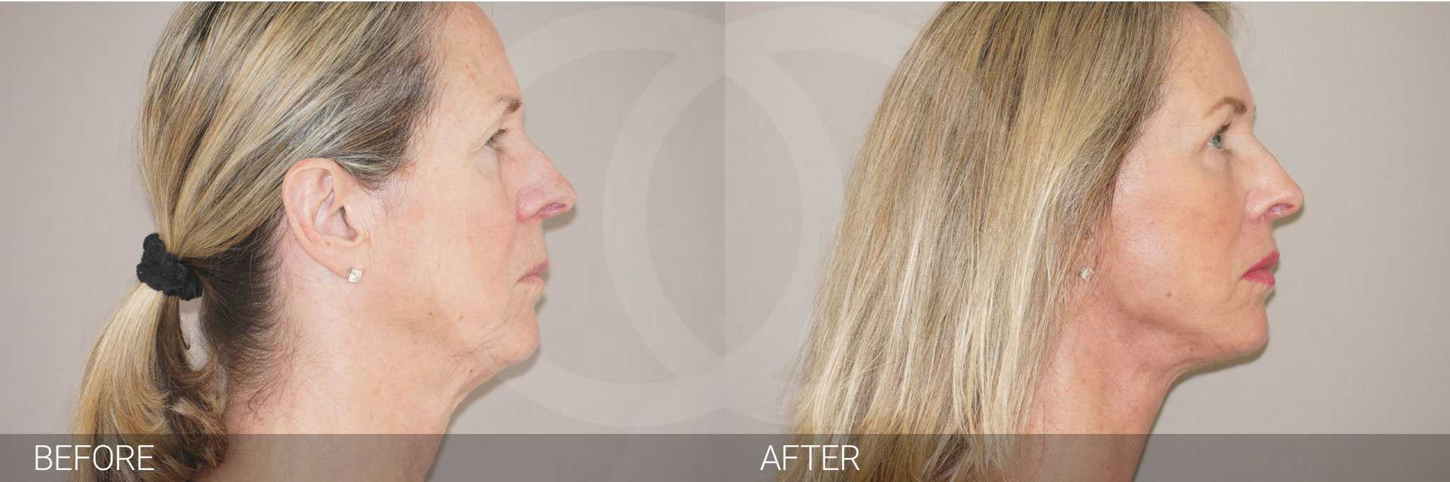 Gesichtsbehandlung mit Eigenfett PAVE-GESICHTSLIFT ante/post-op III