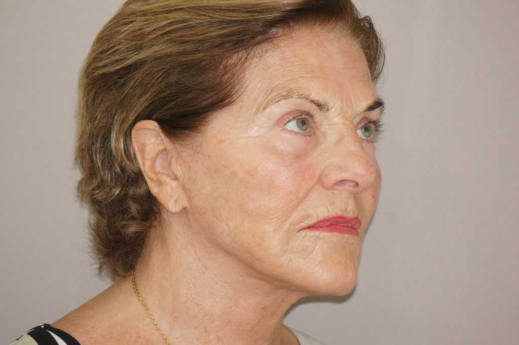 Injerto de grasa facial PAVE-LIFTING DE LA CARA after side