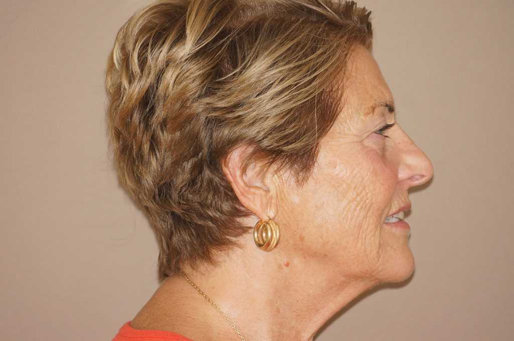 Injerto de grasa facial PAVE-LIFTING DE LA CARA before profile