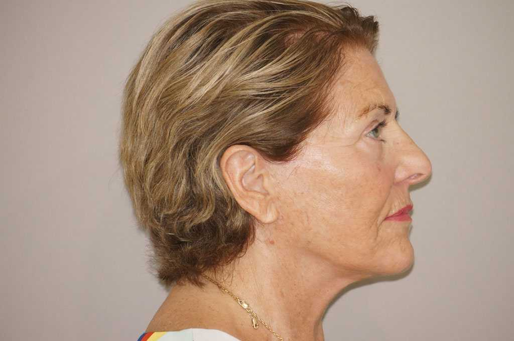 Injerto de grasa facial PAVE-LIFTING DE LA CARA after profile