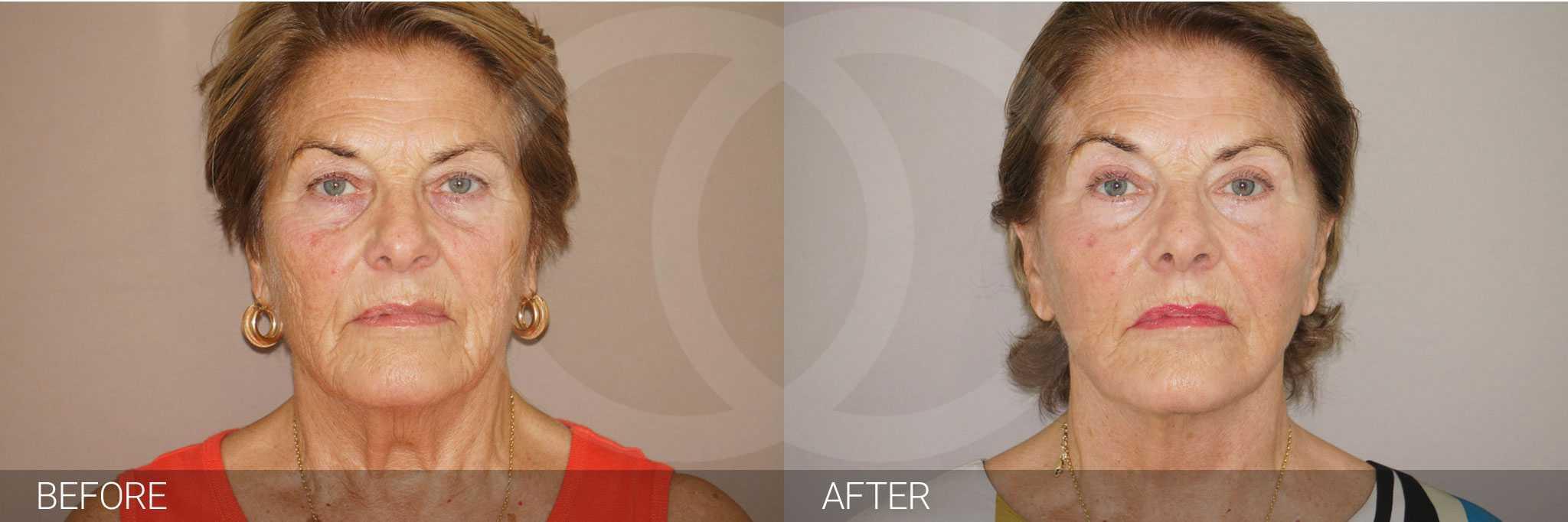 Facial Fat Grafting LIPOGRAFTING FACE ante/post-op I