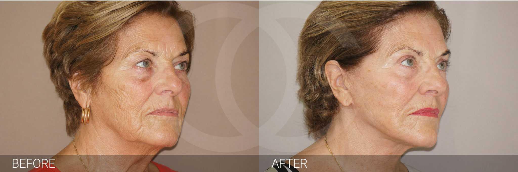 Facial Fat Grafting LIPOGRAFTING FACE ante/post-op II