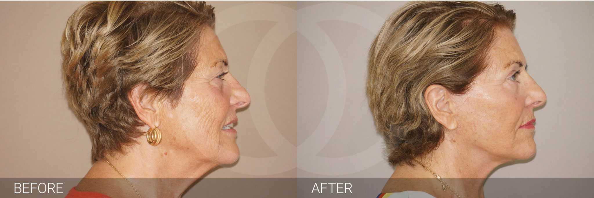 Facial Fat Grafting LIPOGRAFTING FACE ante/post-op III