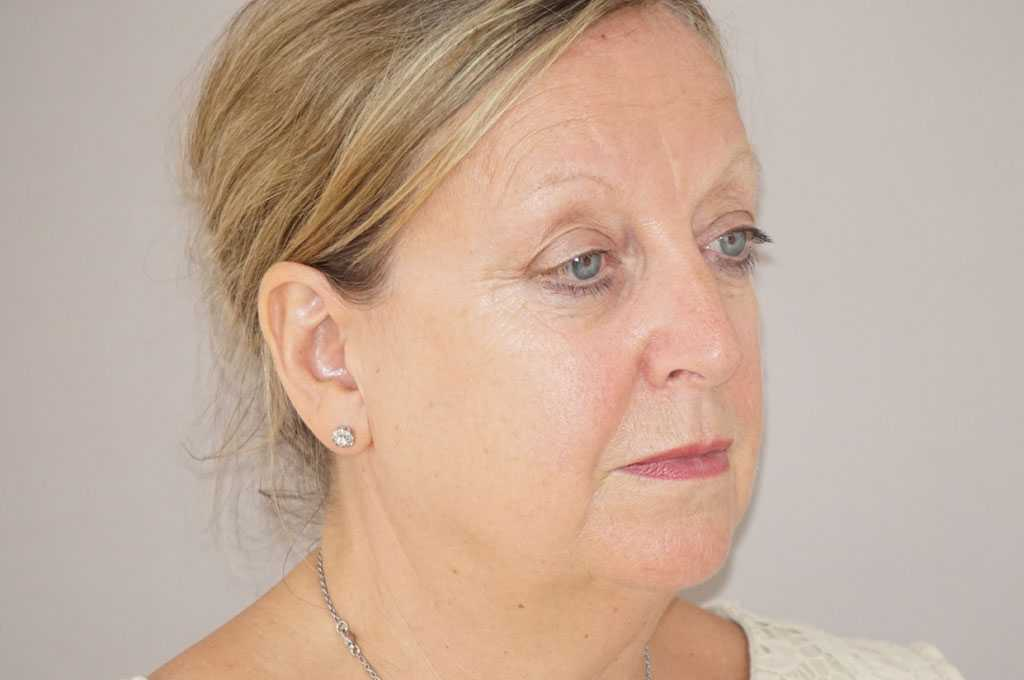 Facial Fat Grafting PAVE FACELIFT before side