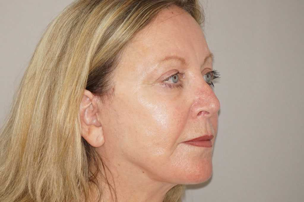 Facial Fat Grafting PAVE FACELIFT after side
