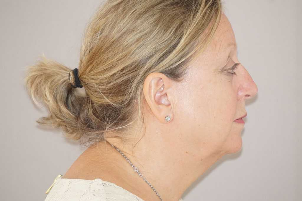 Facial Fat Grafting PAVE FACELIFT before profile
