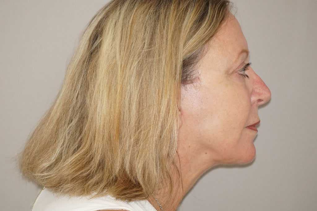 Lipofilling du visage 5 post-op retro/lateral