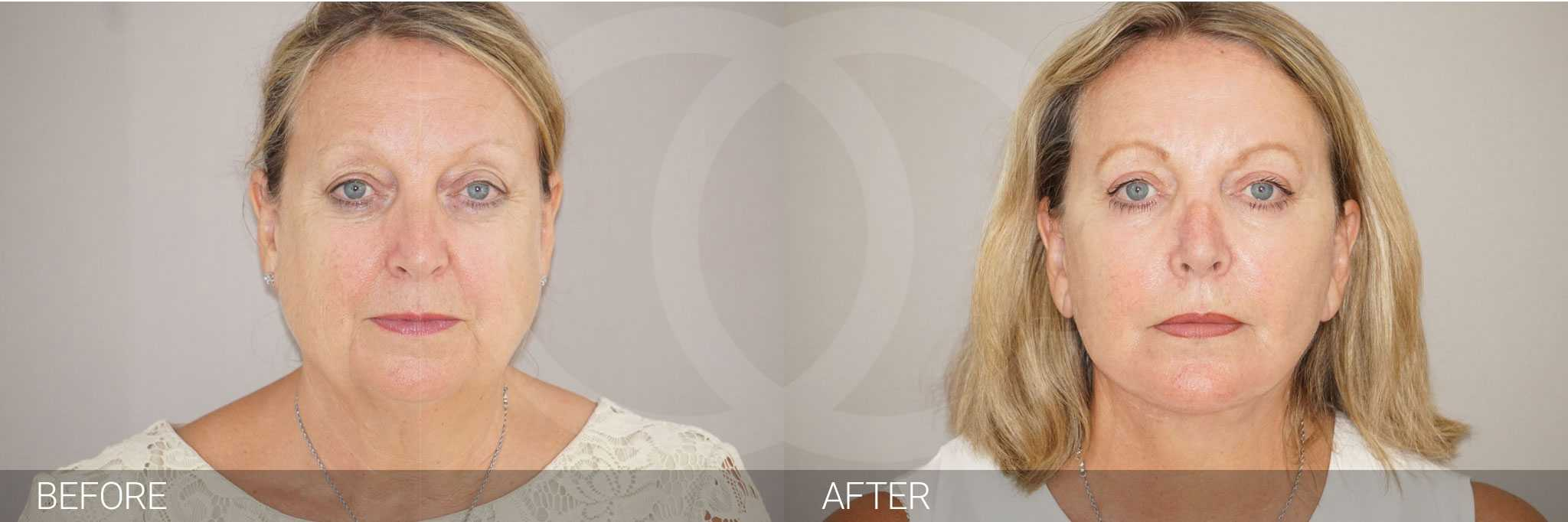 Facial Fat Grafting PAVE FACELIFT ante/post-op I