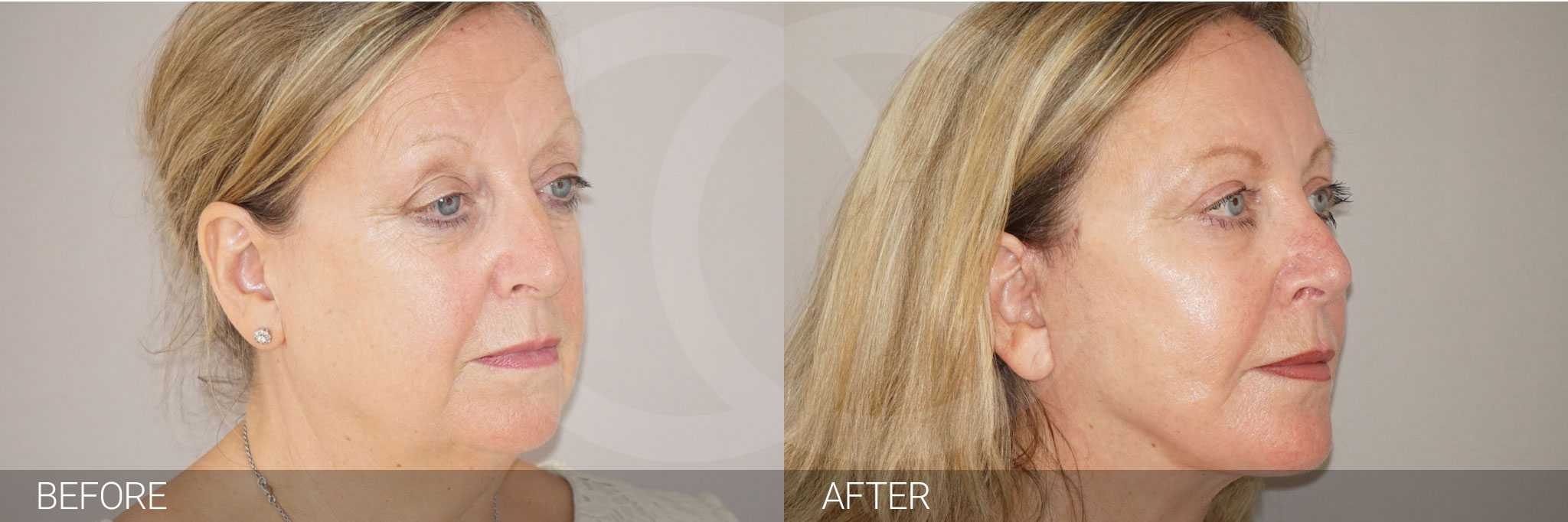 Facial Fat Grafting PAVE FACELIFT ante/post-op II
