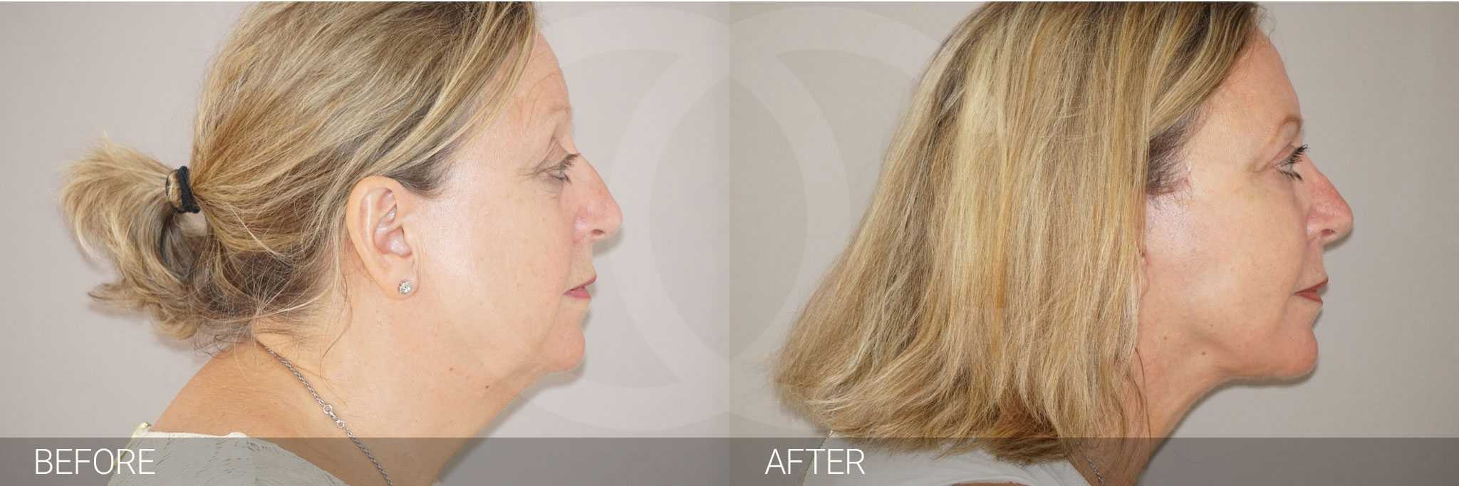 Facial Fat Grafting PAVE FACELIFT ante/post-op III