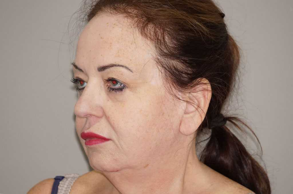 Facial Fat Grafting Facelift and Necklift before side