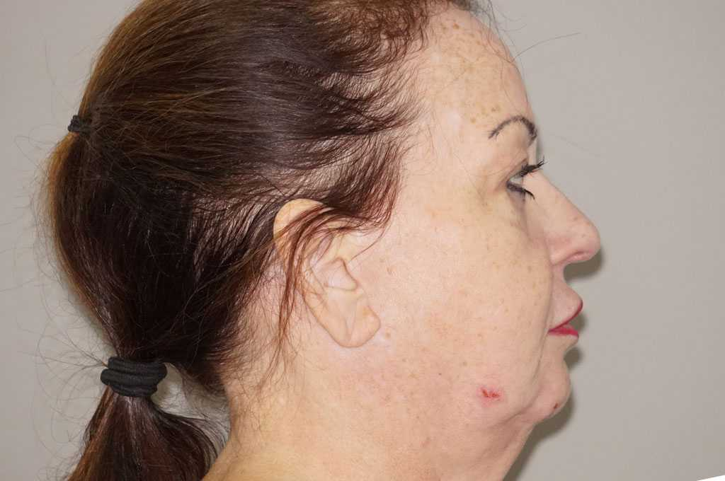 Facial Fat Grafting Facelift and Necklift before profile