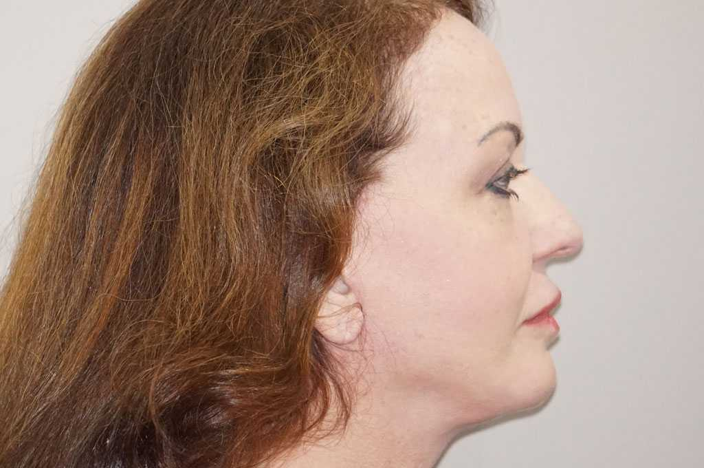 Lipofilling du visage 6 post-op retro/lateral