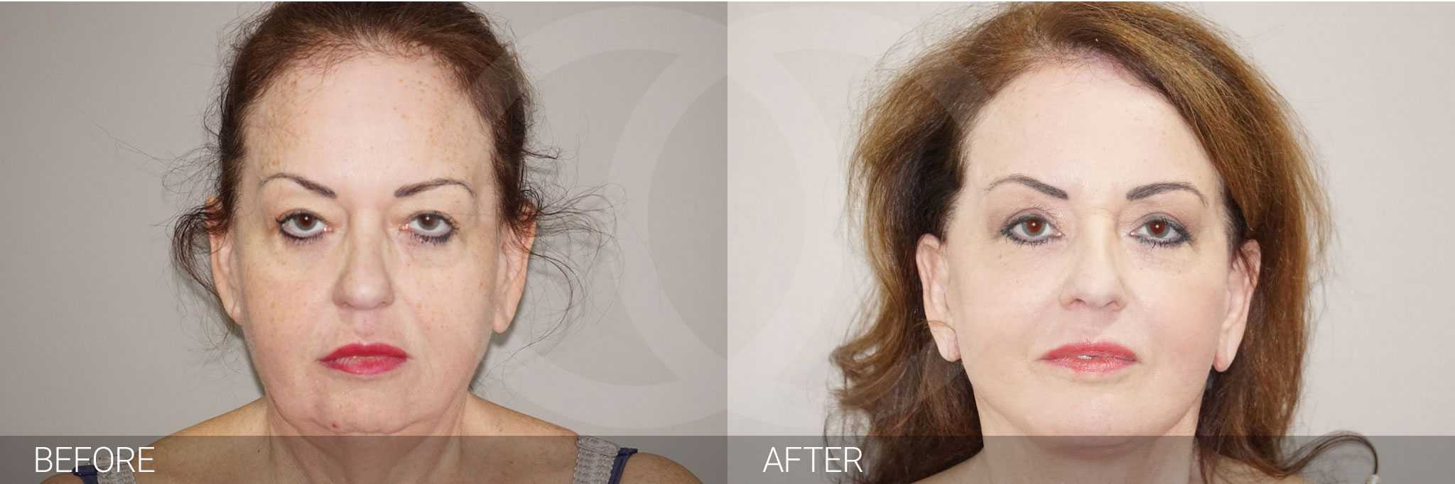 Facial Fat Grafting Facelift and Necklift ante/post-op I