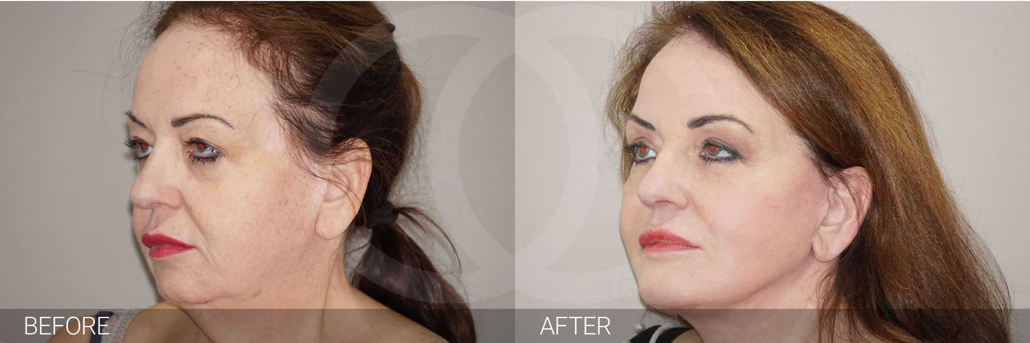 Facial Fat Grafting Facelift and Necklift ante/post-op II