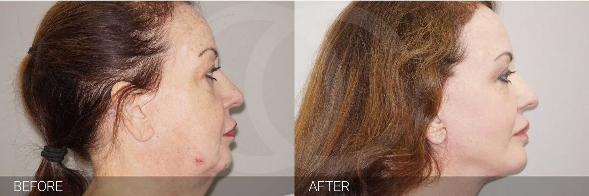 Facial Fat Grafting Facelift and Necklift ante/post-op III